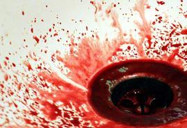 znaczenie snu Krew z nosa